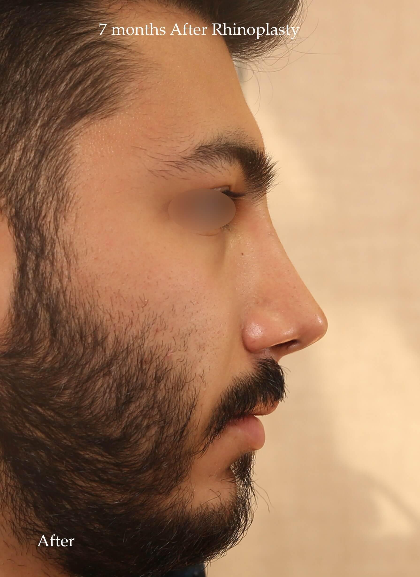 after-rhinoplasty-dr-shahriyar-yahyavi