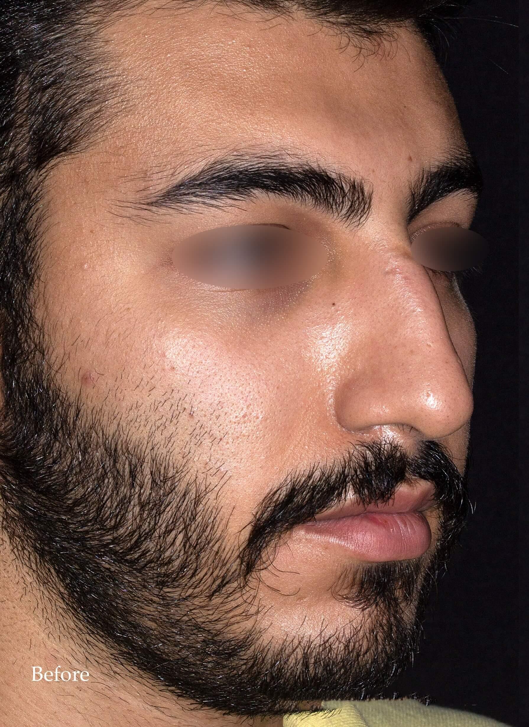 before-rhinoplasty-dr-shahriyar-yahyavi