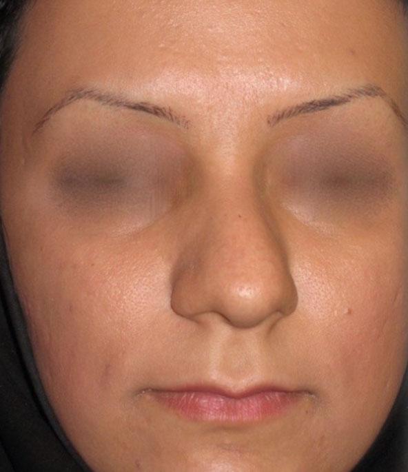 Dr-Yahyavi-Before-case1.jpg