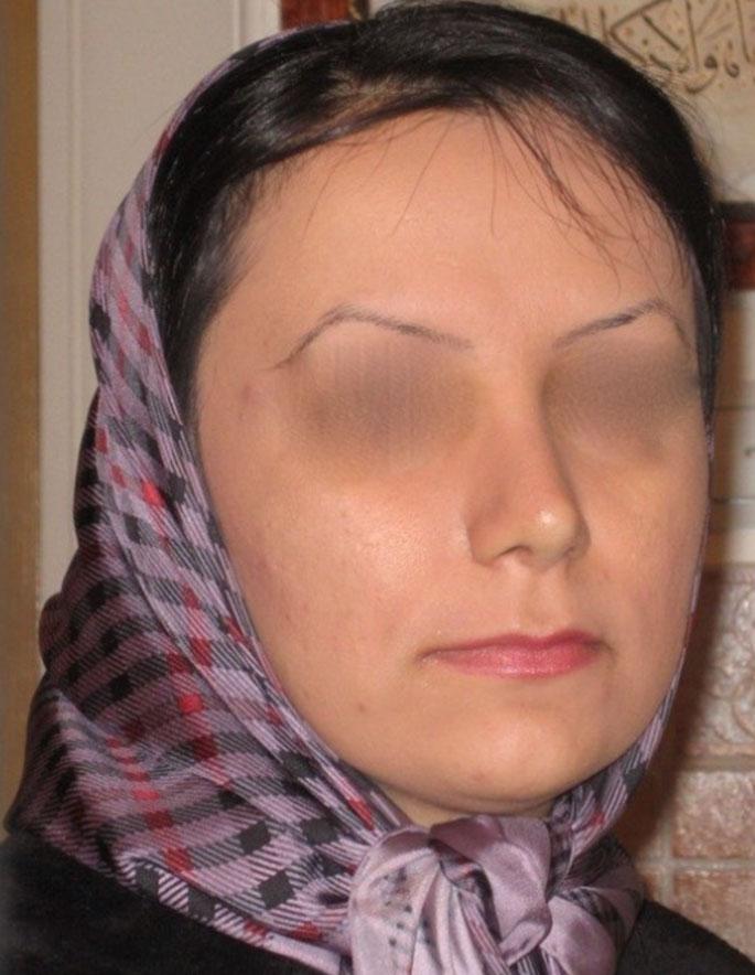 Dr.-Yahyavi-after-case-1.jpg