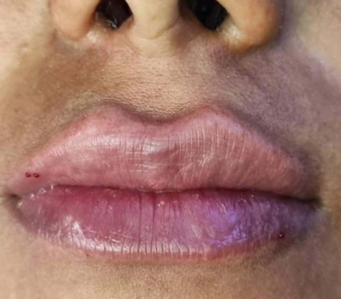 after-lip-augmentation-dr-daryani