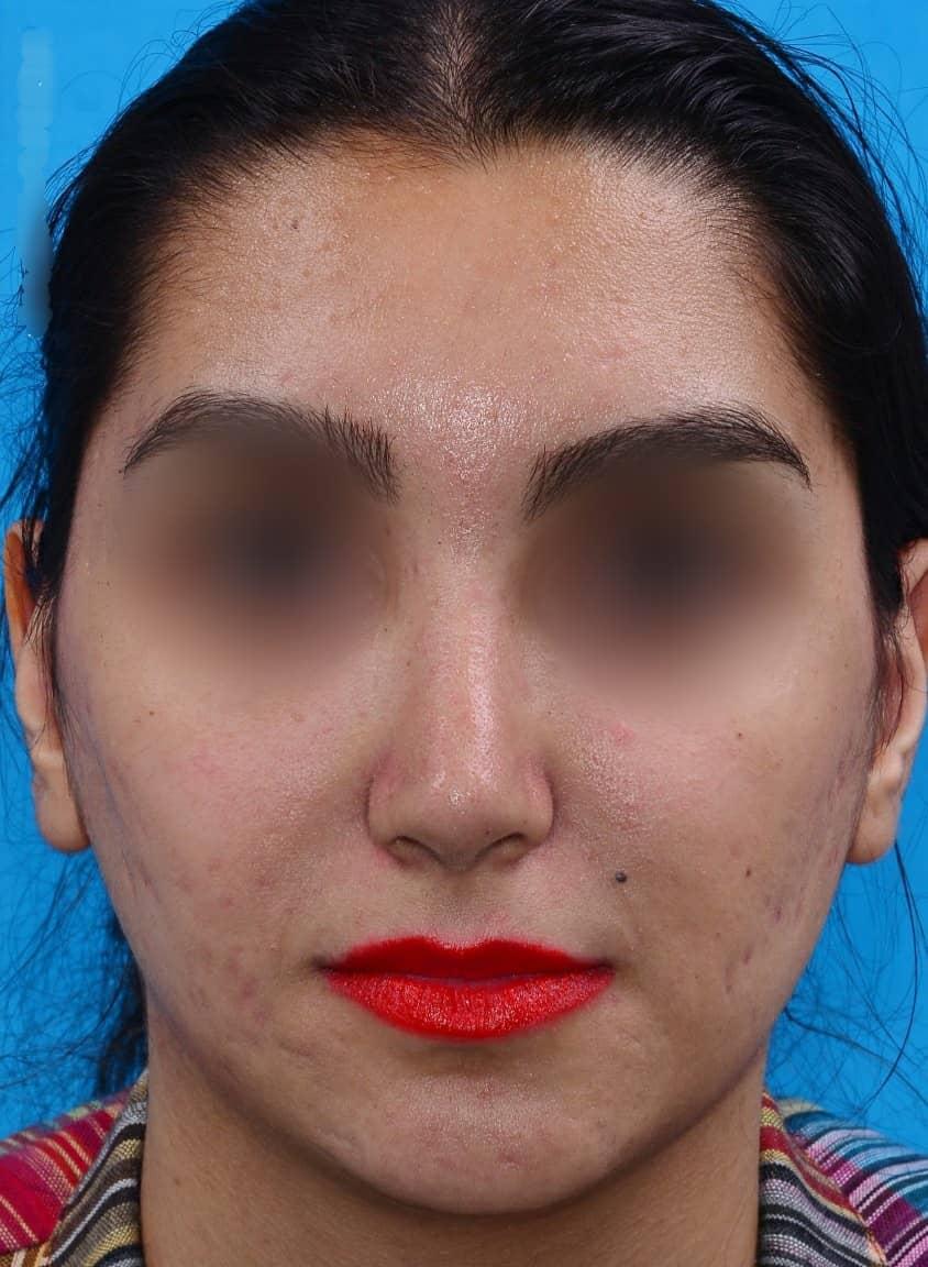 after-rhinoplasty-dr-amin-amali
