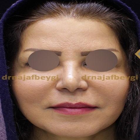 after-face-lift-dr-arash-najaf-beygi