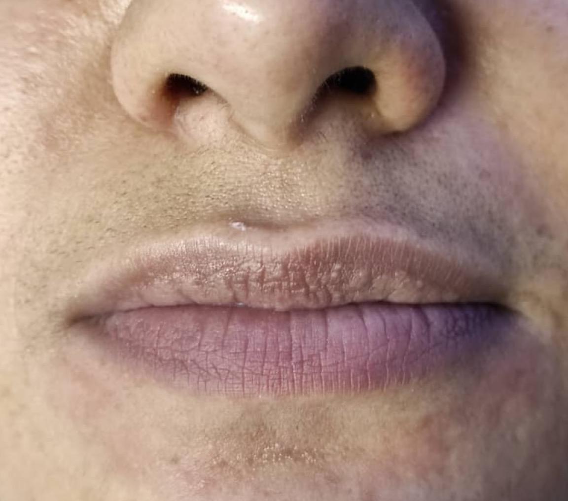 before-lip-augmentation-dr-daryani