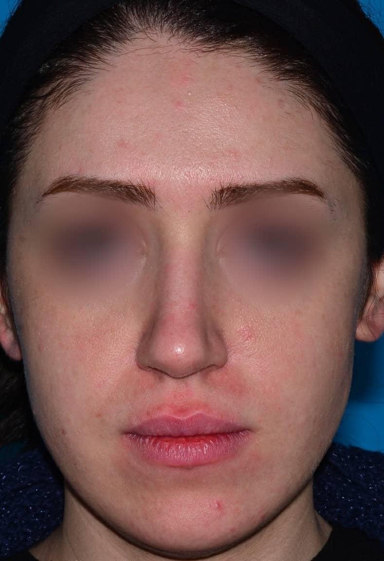 before-rhinoplasty-dr-amin-amali