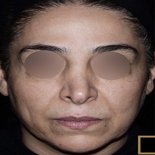 before-face-lift-dr-arash-najaf-beygi