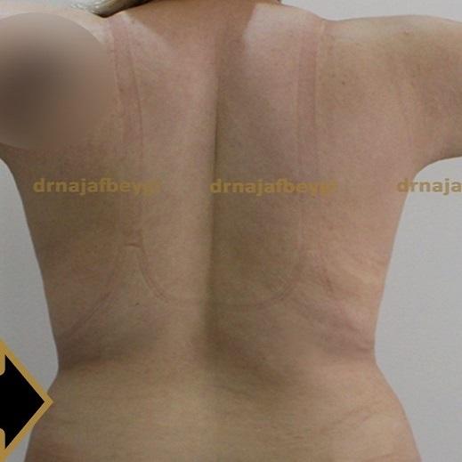 after-liposuction-dr-arash-najaf-beygi