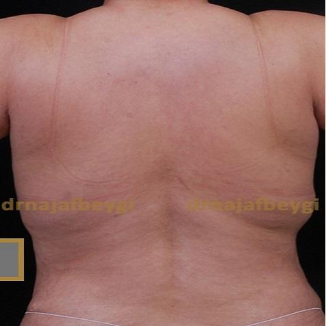 before-liposuction-dr-arash-najaf-beygi
