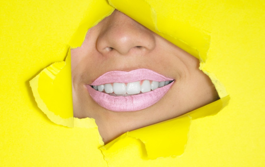Lip Augmentation (Lip fill)